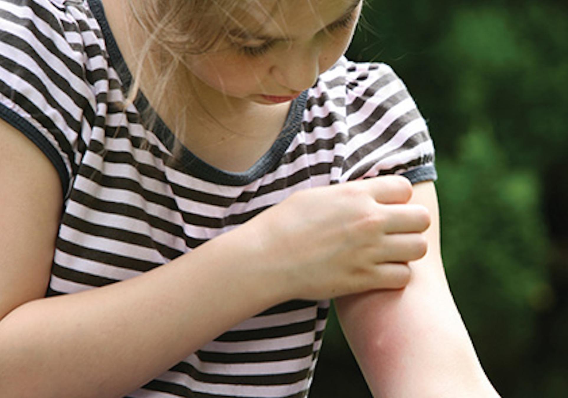 Little Girl with Mosquito Bite - Mosquito Control Alpharetta