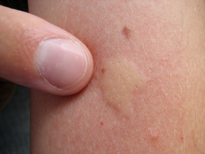 mosquito bite allergy or infection?, Skeleton