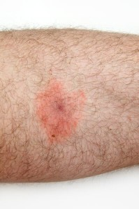 Rash from STARI is similar to that of Lyme Disease